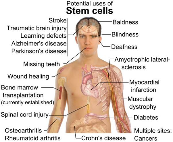 Purtier Placenta potential uses of stem cells